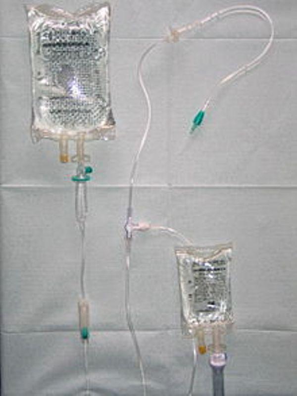 Autohemotransfuzja – jakie są przeciwwskazania zabiegu?