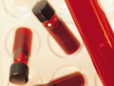 Ozonoterapia dożylna – skuteczne oczyszczanie krwi